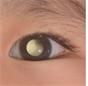 Диагностика ретинобластомы: увидеть, чтобы видеть