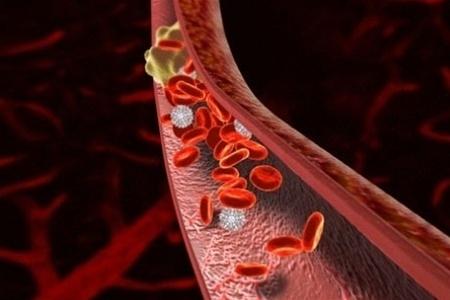 Школа тромбоза «Вопросы эффективной диагностики и безопасной антикоагулянтной терапии острого венозного тромбоза»