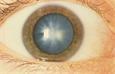 """Экспериментальные глазные капли """"растворяют"""" катаракту"""