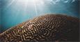 Восстановление когнитивных способностей 100 пациентов