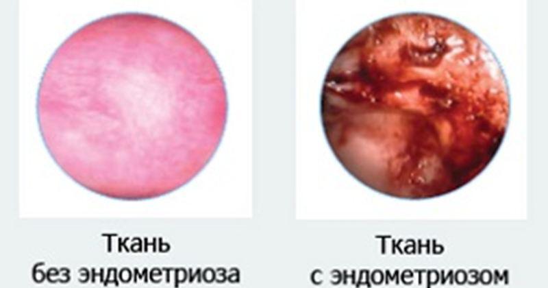 Аномалии матки и влагалища в сочетании с эндометриозом: хирургическое лечение и реабилитация