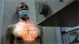 «Большинство взрослого населения России может иметь туберкулез в латентной форме»