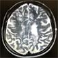 Высоко активный рассеянный склероз
