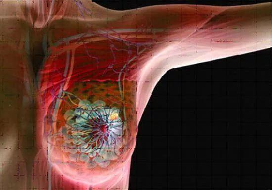 Evre: kanserli hücreler bezin dışına çıkmış ve yayılmaya