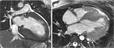 МРТ сердца в диагностике гипертрофической кардиомиопатии и стратификации риска внезапной сердечной смерти
