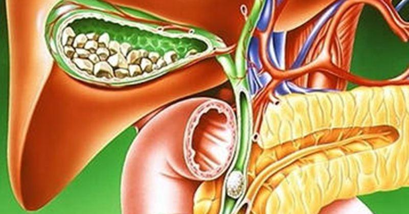 Дискинезия желчевыводящих путей ДЖВП: симптомы, лечение