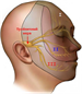Взаимосвязь воспаления с невралгией тройничного нерва
