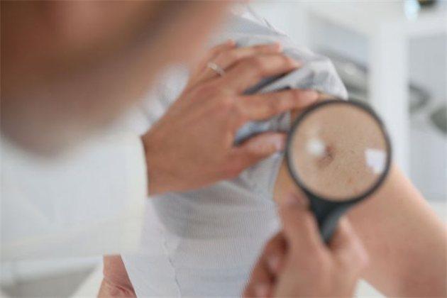 Минздрав разработал восемь стандартов медпомощи при онкозаболеваниях взрослых и детей