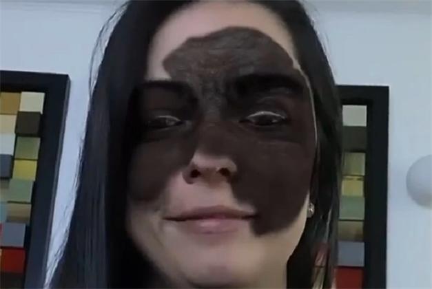 А вы хотите быть не как все? Мать девочки с «маской Бэтмена» предложила примерить огромную родинку на лицо всем, кто осуждает ее за лечение в России