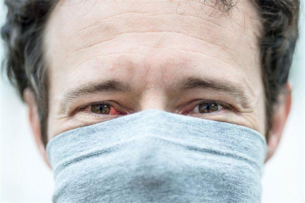 Основные «глазные симптомы» коронавирусной инфекции