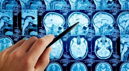 Что нужно знать онкологу о лечении пациентов с глиобластомой