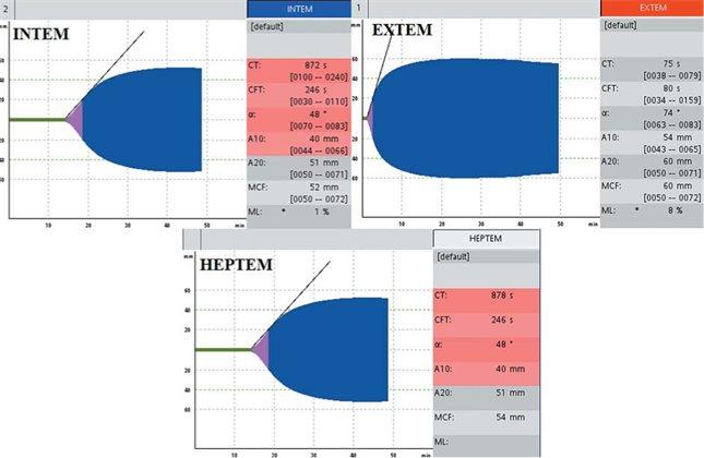 Референсные показатели ротационной тромбоэластометрии у беременных и рожениц: систематический обзор и метаанализ