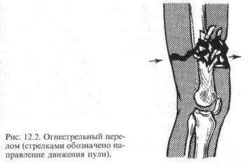 Тактика лечения огнестрельных переломов бедра у высшего командного состава Красной Армии в Великую Отечественную войну