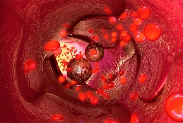 Холестерин может увеличить риск появления метастазов у больных раком