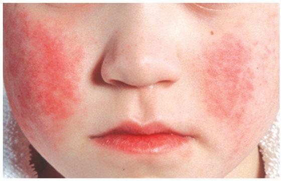 Парвовирусная инфекция у детей и беременных